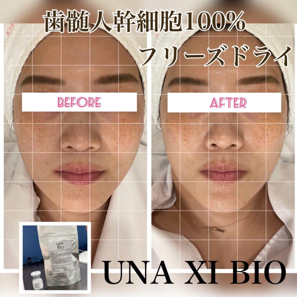 ウナトゥルービューティー UNA XI BIO Before After