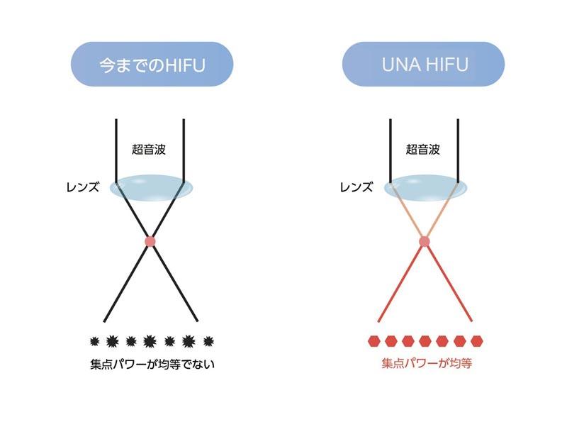 UNAハイフの焦点パワー