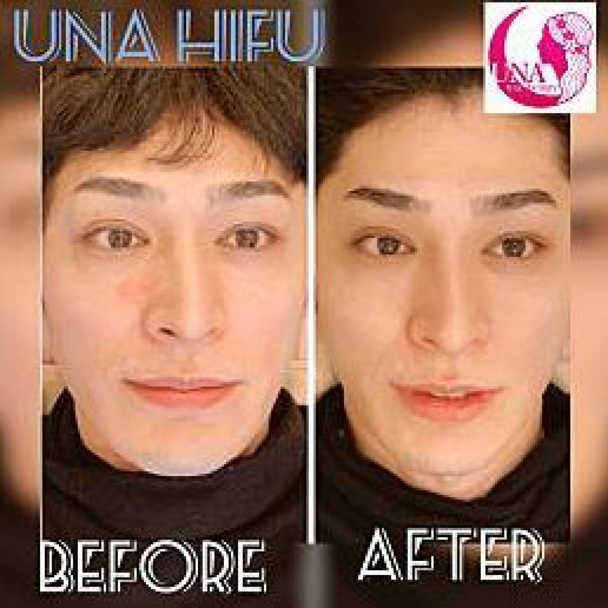 UNA ハイフ Before After